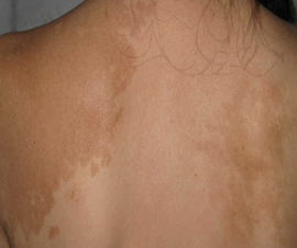 背部白癜风不及时治疗究竟有什么危害