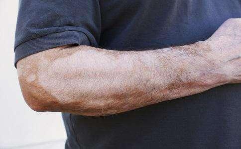 肢端型白癜风如何预防