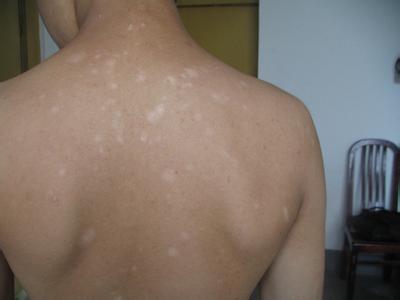 背部上的白癜风有什么症状啊