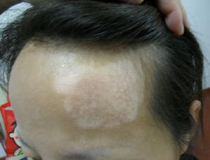 北京最好的白癜风专科医院:怎么治疗女性白癜风
